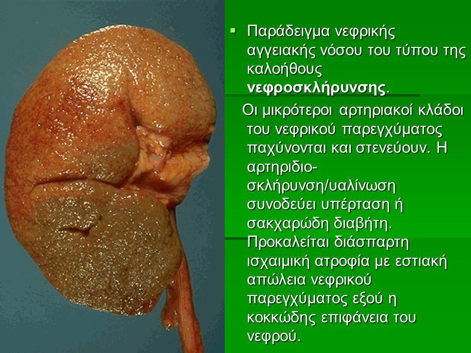  Παράδειγμα νεφρικής αγγειακής νόσου του τύπου της καλοήθους νεφροσκλήρυνσης.