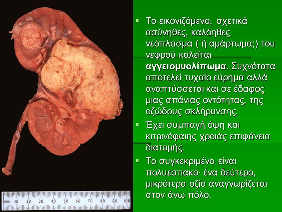  To εικονιζόμενο, σχετικά ασύνηθες, καλόηθες νεόπλασμα ( ή αμάρτωμα;) του νεφρού καλείται αγγειομυολίπωμα.
