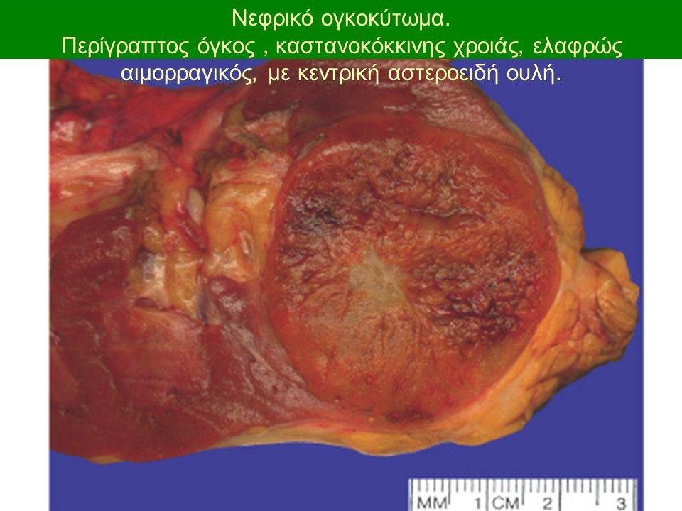 Νεφρικό ογκοκύτωμα.