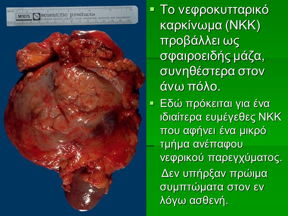 Το νεφροκυτταρικό καρκίνωμα (ΝΚΚ) προβάλλει ως σφαιροειδής μάζα, συνηθέστερα στον άνω πόλο.