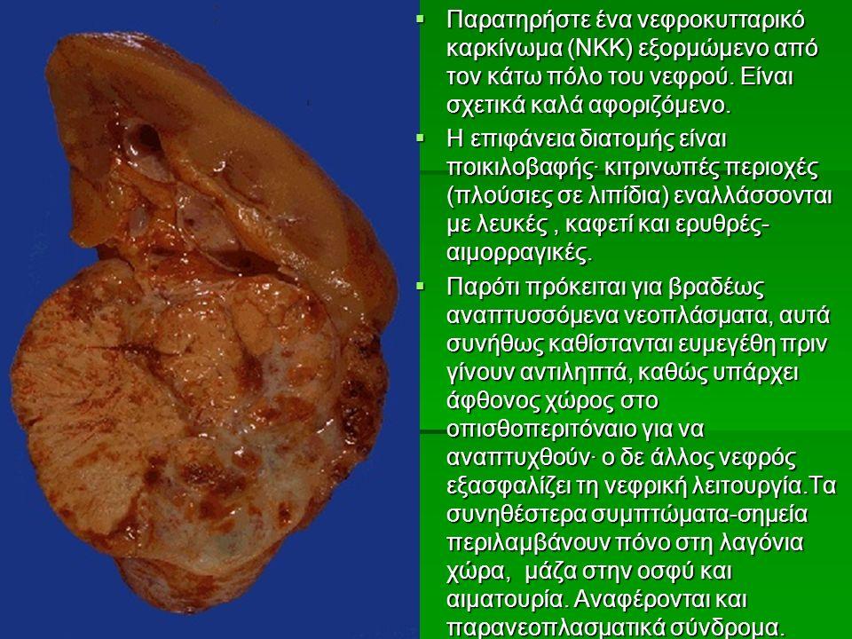  Παρατηρήστε ένα νεφροκυτταρικό καρκίνωμα (ΝΚΚ) εξορμώμενο από τον κάτω πόλο του νεφρού.
