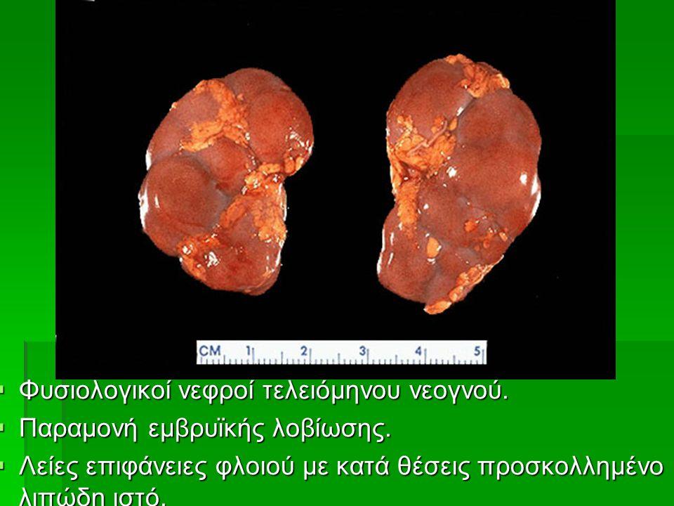  Φυσιολογικοί νεφροί τελειόμηνου νεογνού.  Παραμονή εμβρυϊκής λοβίωσης.