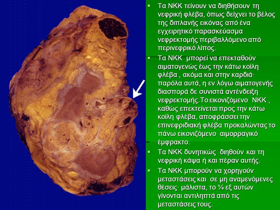  Τα ΝΚΚ τείνουν να διηθήσουν τη νεφρική φλέβα, όπως δείχνει το βέλος της διπλανής εικόνας από ένα εγχειρητικό παρασκεύασμα νεφρεκτομής περιβαλλόμενο από περινεφρικό λίπος.