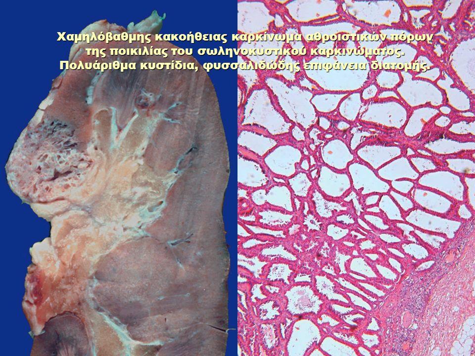 Χαμηλόβαθμης κακοήθειας καρκίνωμα αθροιστικών πόρων της ποικιλίας του σωληνοκυστικού καρκινώματος.