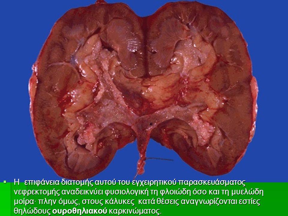  H επιφάνεια διατομής αυτού του εγχειρητικού παρασκευάσματος νεφρεκτομής αναδεικνύει φυσιολογική τη φλοιώδη όσο και τη μυελώδη μοίρα∙ πλην όμως, στους κάλυκες κατά θέσεις αναγνωρίζονται εστίες θηλώδους ουροθηλιακού καρκινώματος.