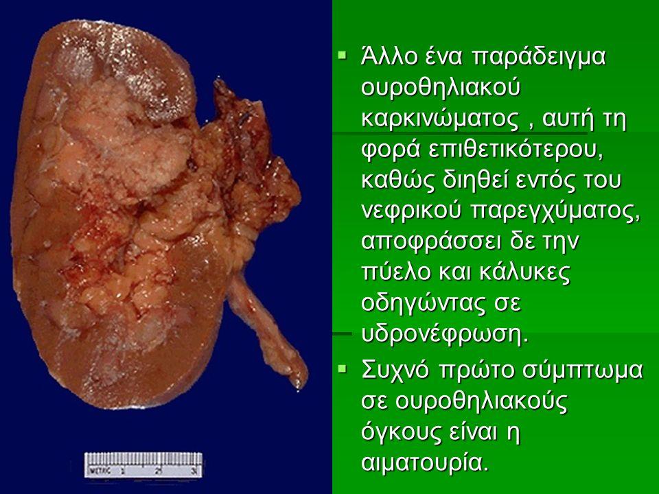  Άλλο ένα παράδειγμα ουροθηλιακού καρκινώματος, αυτή τη φορά επιθετικότερου, καθώς διηθεί εντός του νεφρικού παρεγχύματος, αποφράσσει δε την πύελο και κάλυκες οδηγώντας σε υδρονέφρωση.