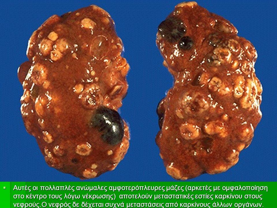  Αυτές οι πολλαπλές ανώμαλες αμφοτερόπλευρες μάζες (αρκετές με ομφαλοποίηση στο κέντρο τους λόγω νέκρωσης) αποτελούν μεταστατικές εστίες καρκίνου στους νεφρούς.Ο νεφρός δε δέχεται συχνά μεταστάσεις από καρκίνους άλλων οργάνων.