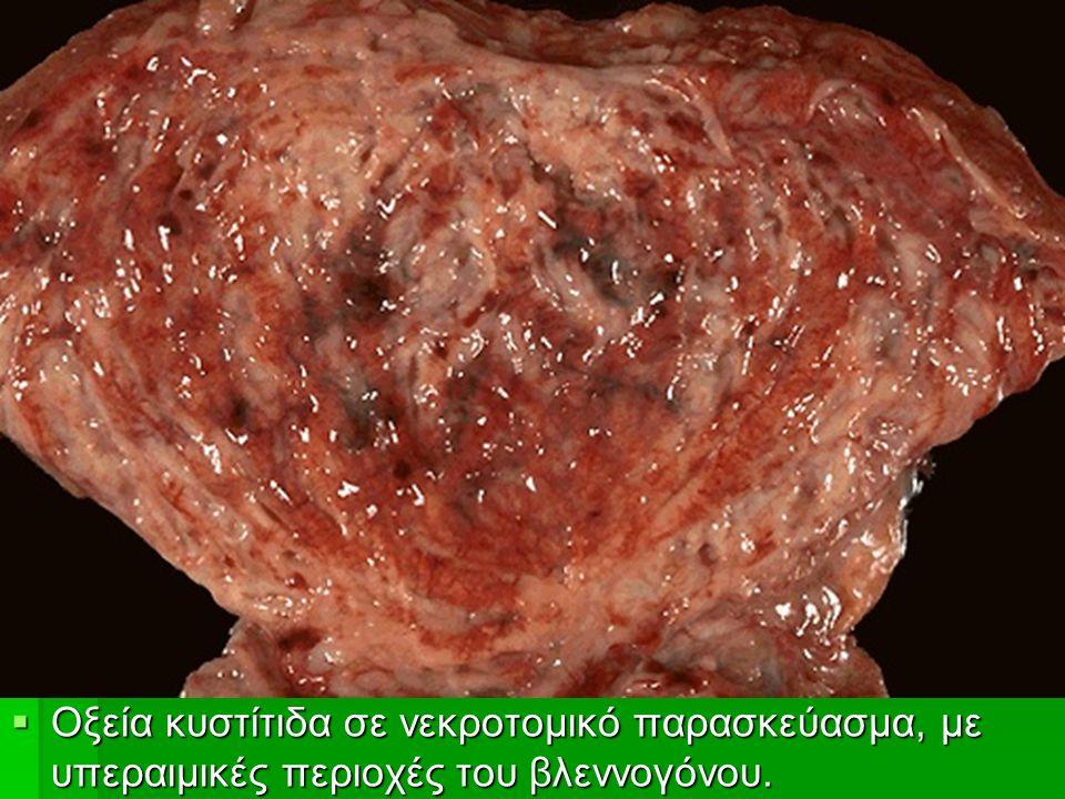  Οξεία κυστίτιδα σε νεκροτομικό παρασκεύασμα, με υπεραιμικές περιοχές του βλεννογόνου.