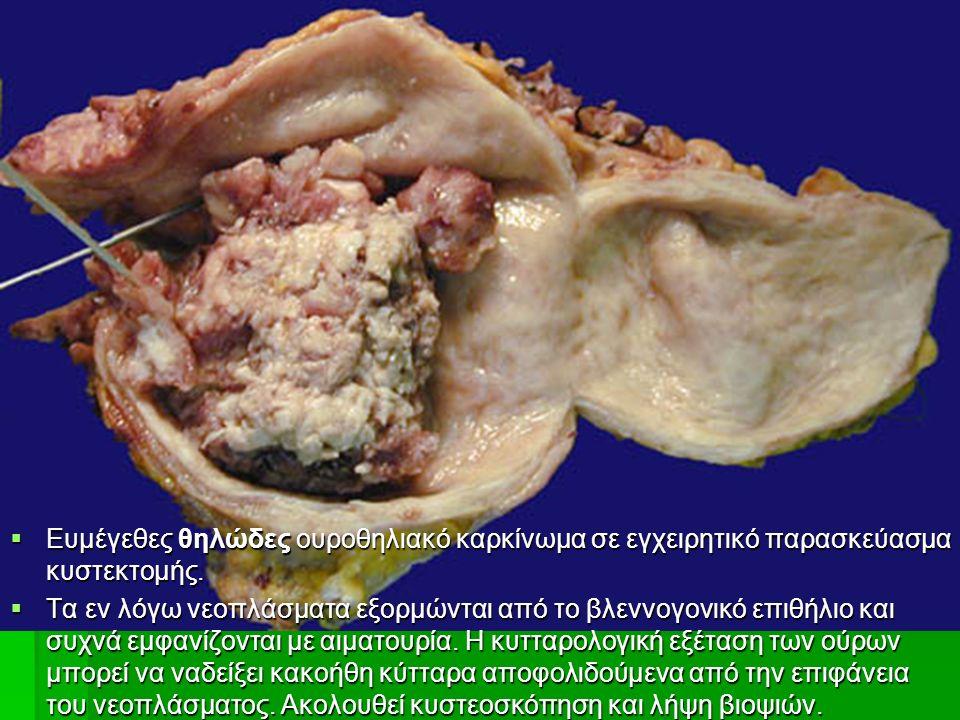  Ευμέγεθες θηλώδες ουροθηλιακό καρκίνωμα σε εγχειρητικό παρασκεύασμα κυστεκτομής.