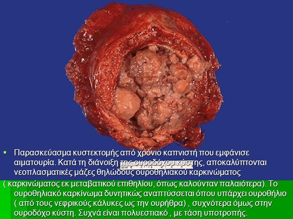  Παρασκεύασμα κυστεκτομής από χρόνιο καπνιστή που εμφάνισε αιματουρία.