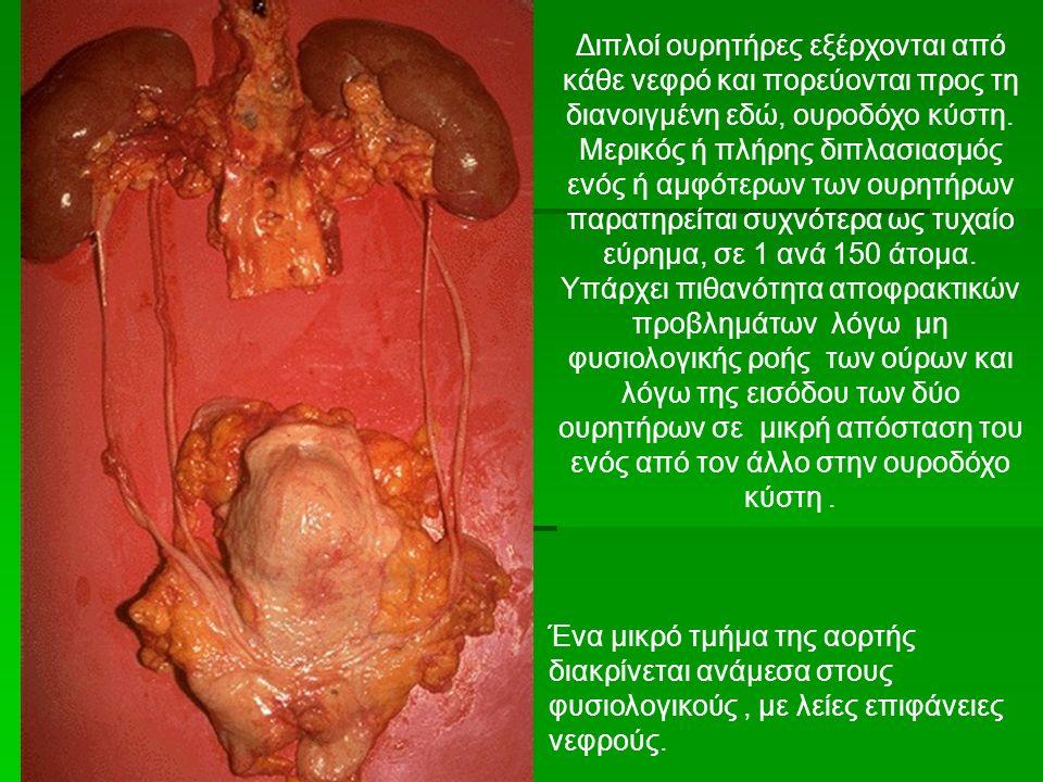 Διπλοί ουρητήρες εξέρχονται από κάθε νεφρό και πορεύονται προς τη διανοιγμένη εδώ, ουροδόχο κύστη.