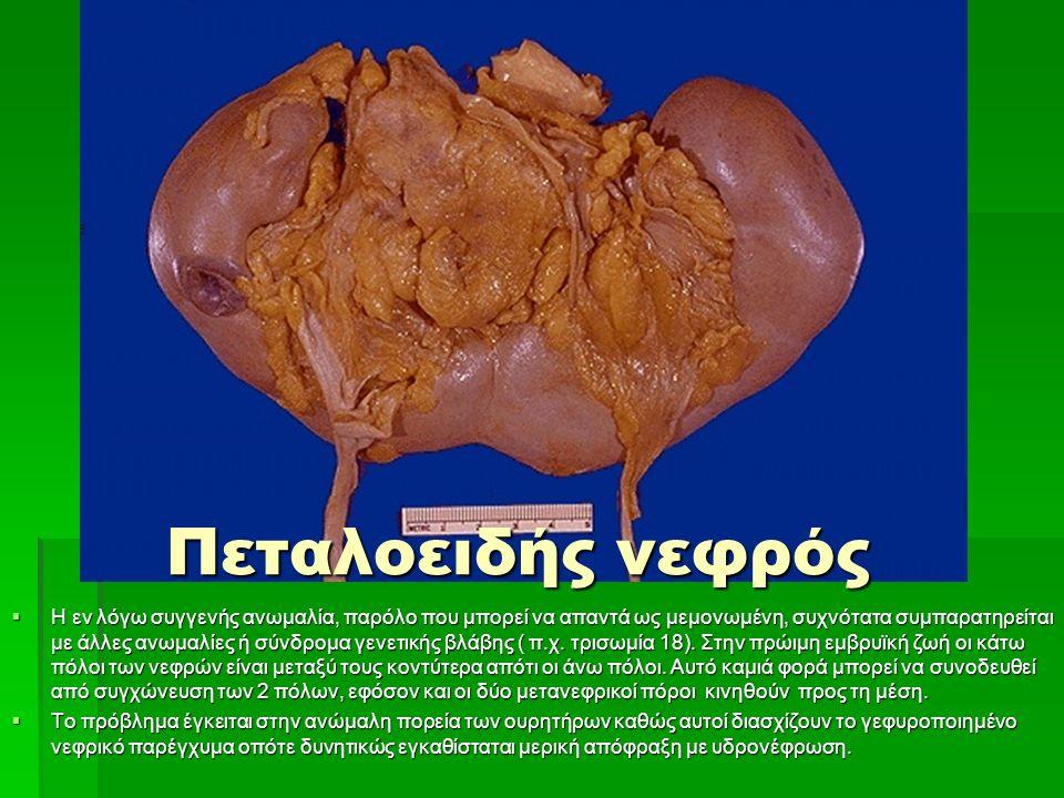Πεταλοειδής νεφρός  Η εν λόγω συγγενής ανωμαλία, παρόλο που μπορεί να απαντά ως μεμονωμένη, συχνότατα συμπαρατηρείται με άλλες ανωμαλίες ή σύνδρομα γενετικής βλάβης ( π.χ.