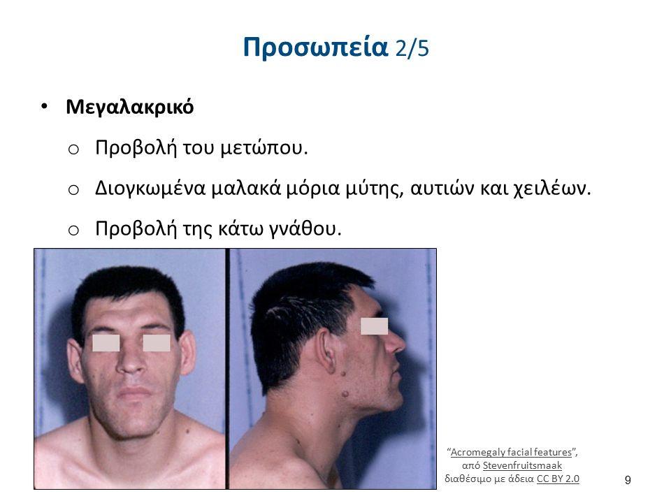 """Προσωπεία 2/5 Μεγαλακρικό o Προβολή του μετώπου. o Διογκωμένα μαλακά μόρια μύτης, αυτιών και χειλέων. o Προβολή της κάτω γνάθου. 9 """"Acromegaly facial"""