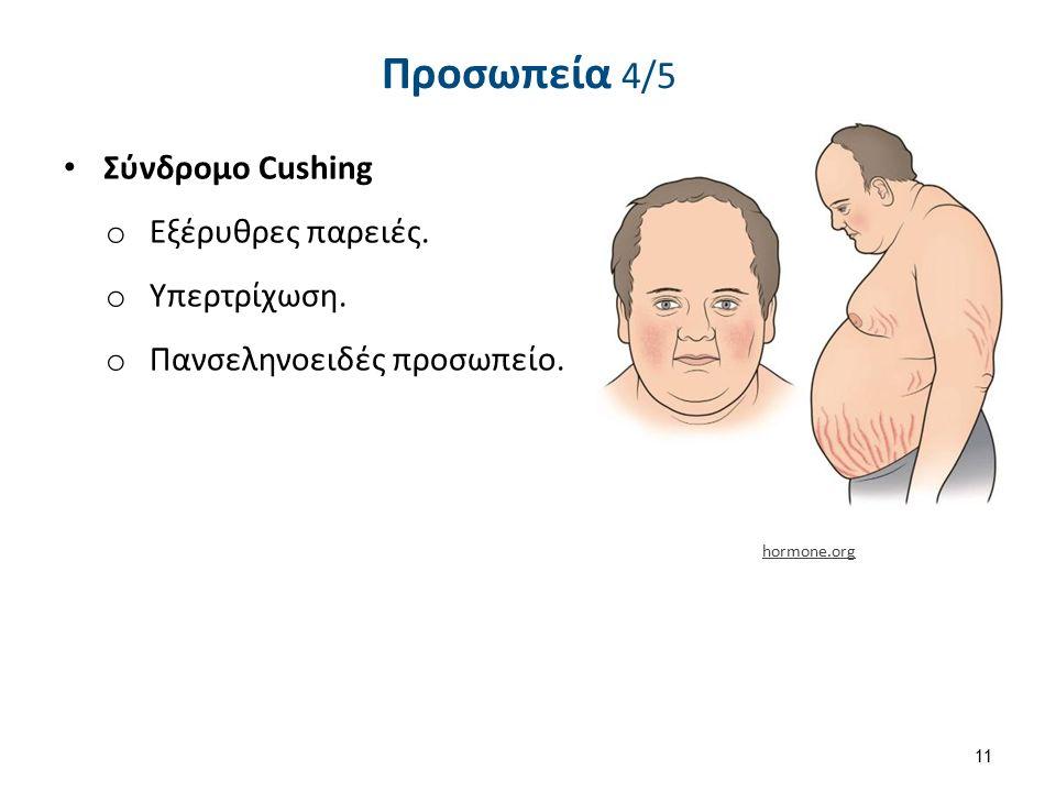 Προσωπεία 4/5 Σύνδρομο Cushing o Εξέρυθρες παρειές. o Υπερτρίχωση. o Πανσεληνοειδές προσωπείο. 11 hormone.org