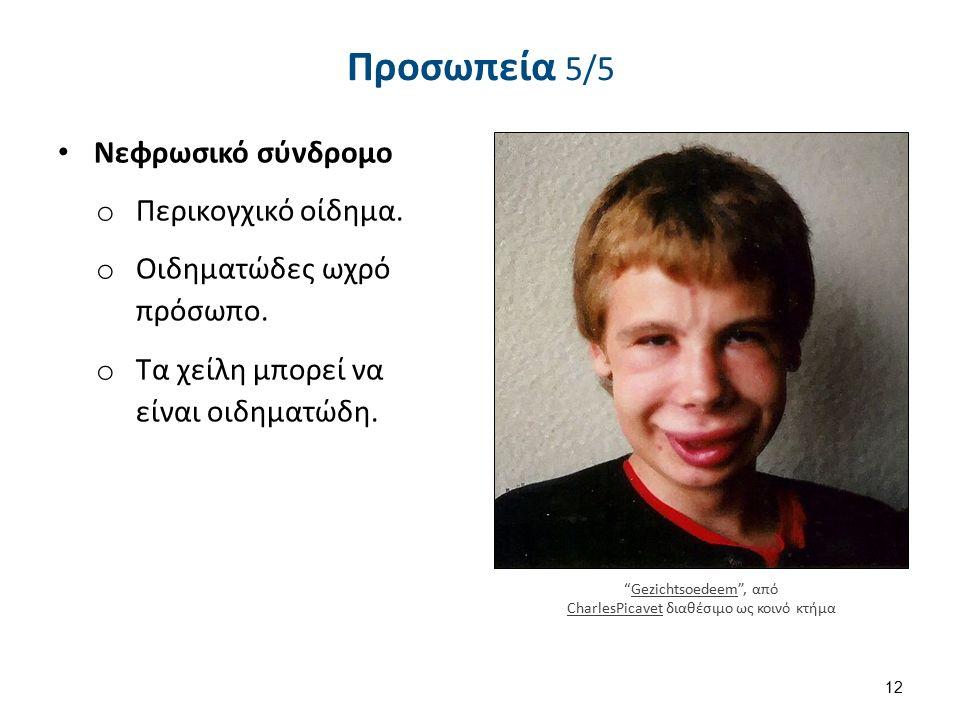 """Προσωπεία 5/5 Νεφρωσικό σύνδρομο o Περικογχικό οίδημα. o Οιδηματώδες ωχρό πρόσωπο. o Τα χείλη μπορεί να είναι οιδηματώδη. 12 """"Gezichtsoedeem"""", από Cha"""