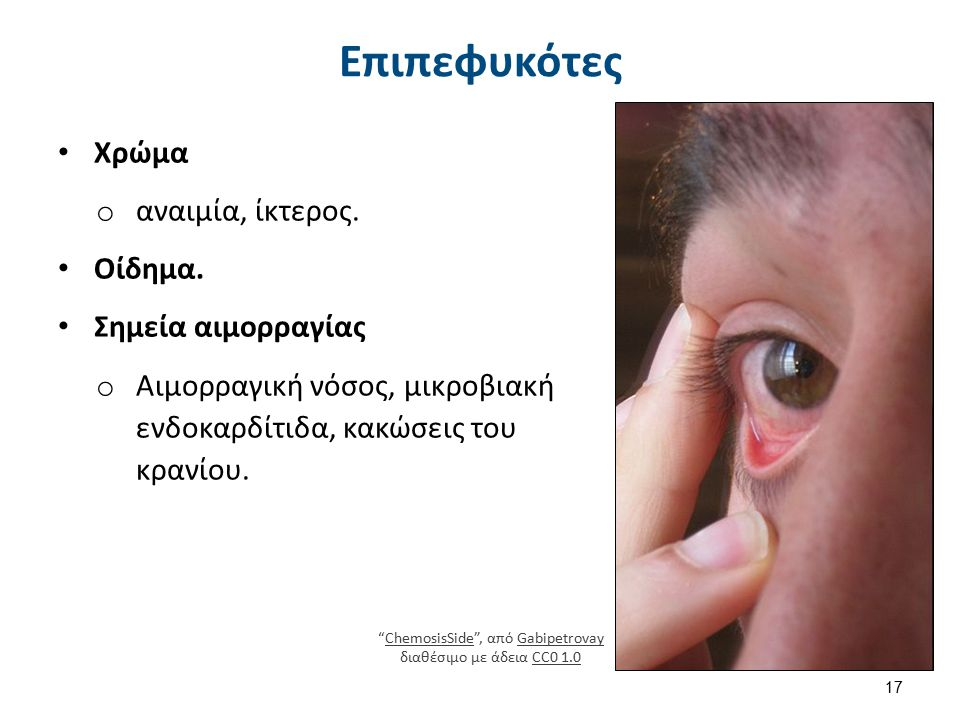 """Χρώμα o αναιμία, ίκτερος. Οίδημα. Σημεία αιμορραγίας o Αιμορραγική νόσος, μικροβιακή ενδοκαρδίτιδα, κακώσεις του κρανίου. 17 Επιπεφυκότες """"ChemosisSid"""