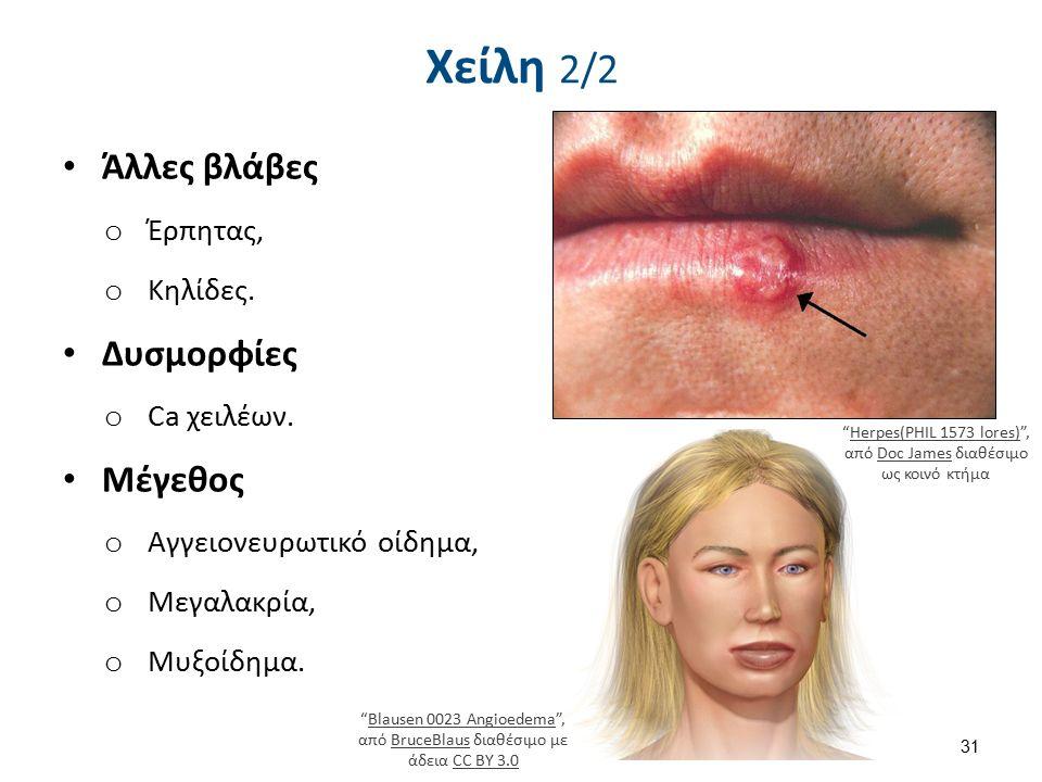"""Χείλη 2/2 Άλλες βλάβες o Έρπητας, o Κηλίδες. Δυσμορφίες o Ca χειλέων. Μέγεθος o Αγγειονευρωτικό οίδημα, o Μεγαλακρία, o Μυξοίδημα. 31 """"Herpes(PHIL 157"""