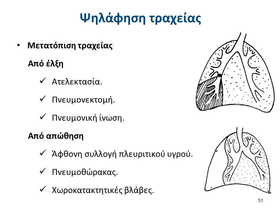 Μετατόπιση τραχείας Από έλξη Ατελεκτασία. Πνευμονεκτομή. Πνευμονική ίνωση. Από απώθηση Άφθονη συλλογή πλευριτικού υγρού. Πνευμοθώρακας. Χωροκατακτητικ