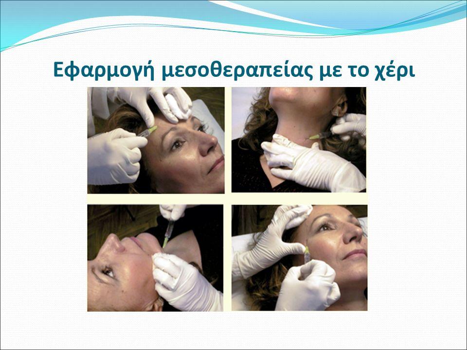 Εφαρμογή μεσοθεραπείας με το χέρι