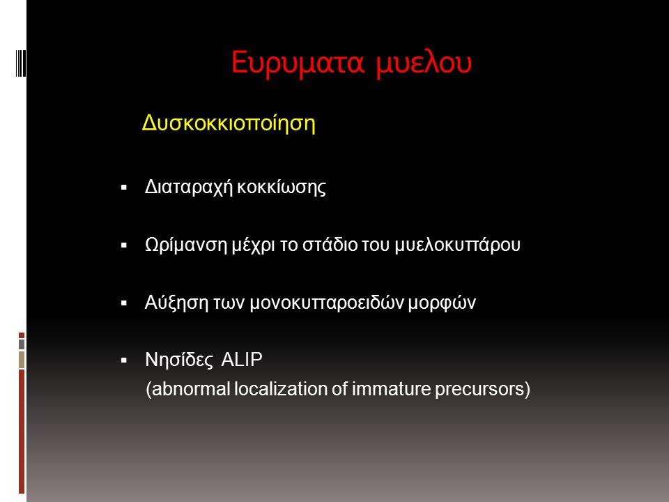 Ευρυματα μυελου Δυσκοκκιοποίηση  Διαταραχή κοκκίωσης  Ωρίμανση μέχρι το στάδιο του μυελοκυττάρου  Αύξηση των μονοκυτταροειδών μορφών  Νησίδες ALIP (abnormal localization of immature precursors)