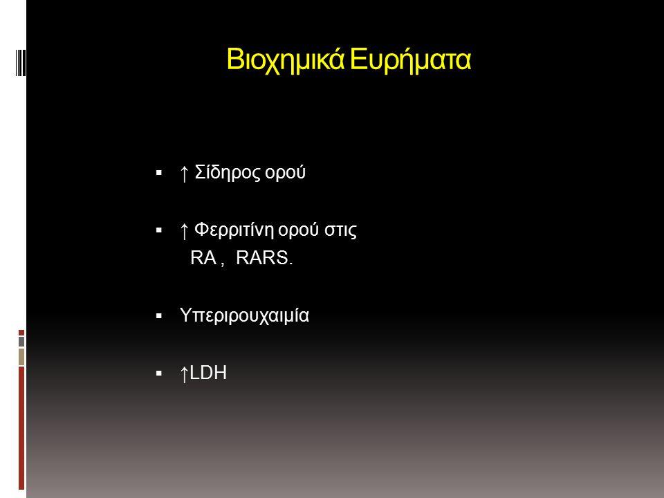 Βιοχημικά Ευρήματα  ↑ Σίδηρος ορού  ↑ Φερριτίνη ορού στις RA, RARS.  Yπεριρουχαιμία  ↑LDH