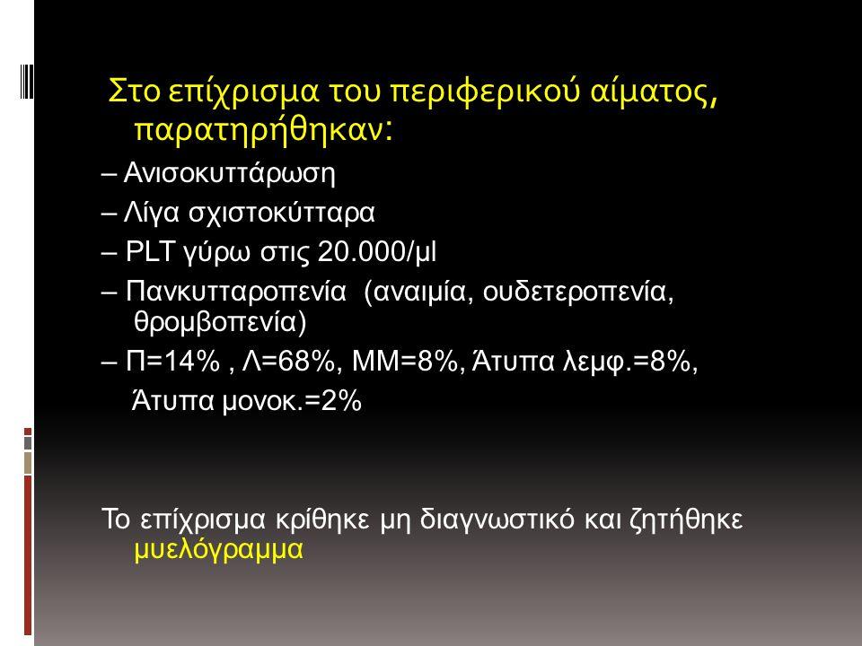 Στο επίχρισμα του περιφερικού αίματος, παρατηρήθηκαν : – Ανισοκυττάρωση – Λίγα σχιστοκύτταρα – PLT γύρω στις 20.000/μl – Πανκυτταροπενία (αναιμία, ουδετεροπενία, θρομβοπενία) – Π=14%, Λ=68%, ΜΜ=8%, Άτυπα λεμφ.=8%, Άτυπα μονοκ.=2% Το επίχρισμα κρίθηκε μη διαγνωστικό και ζητήθηκε μυελόγραμμα