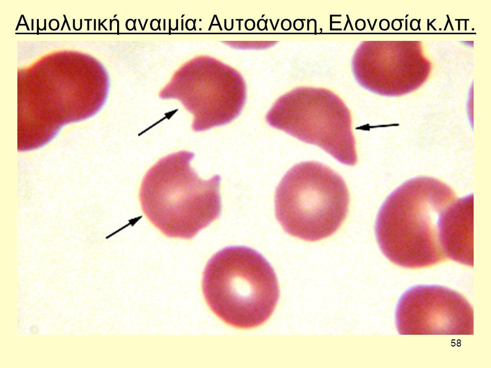 58 Αιμολυτική αναιμία: Αυτοάνοση, Ελονοσία κ.λπ.