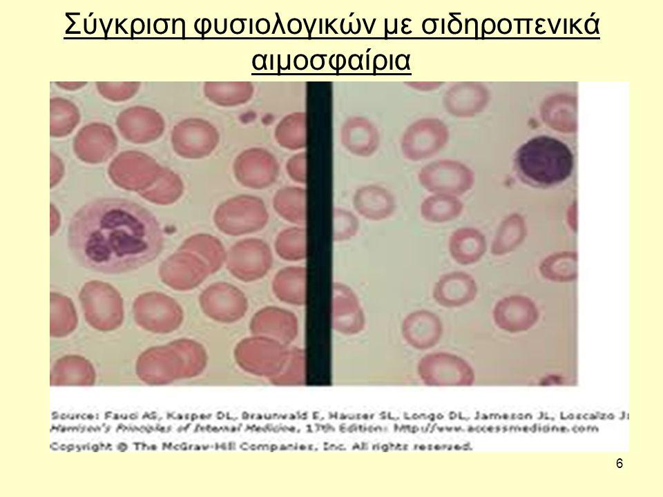 6 Σύγκριση φυσιολογικών με σιδηροπενικά αιμοσφαίρια