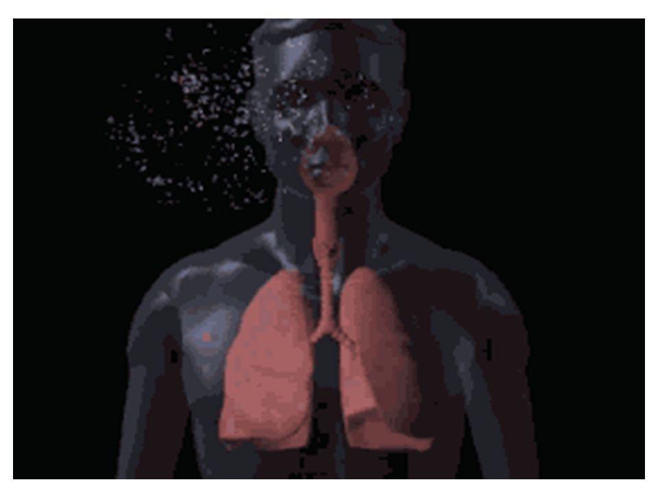ΕΝΔΕΙΞΕΙΣ ΤΡΑΧΕΙΟΣΤΟΜΙΑΣ Απόφραξη της ανώτερης αναπνευστικής οδού.