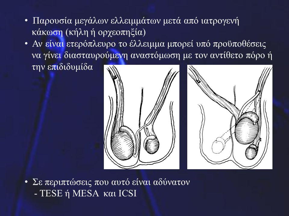 Παρουσία μεγάλων ελλειμμάτων μετά από ιατρογενή κάκωση (κήλη ή ορχεοπηξία) Αν είναι ετερόπλευρο το έλλειμμα μπορεί υπό προϋποθέσεις να γίνει διασταυρο