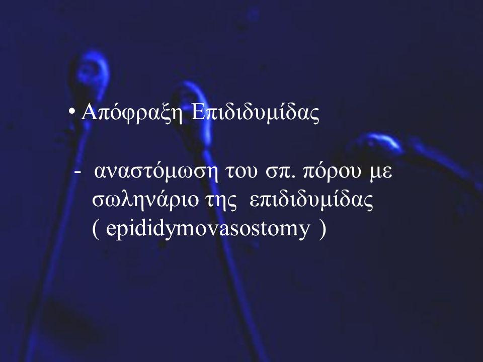 Απόφραξη Επιδιδυμίδας - αναστόμωση του σπ. πόρου με σωληνάριο της επιδιδυμίδας ( epididymovasostomy )