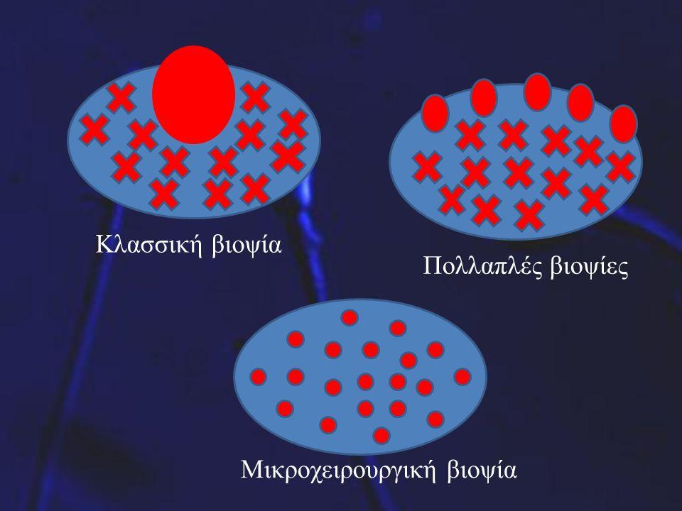 Κλασσική βιοψία Πολλαπλές βιοψίες Μικροχειρουργική βιοψία