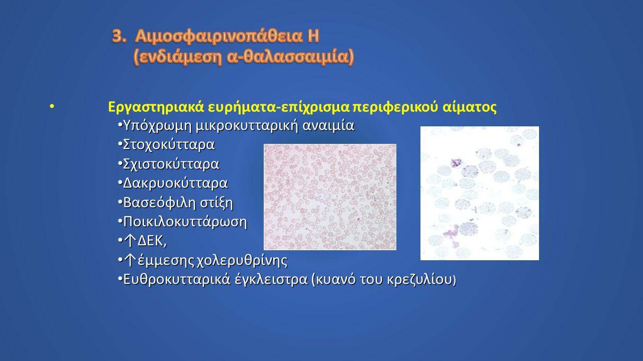 Εργαστηριακά ευρήματα-επίχρισμα περιφερικού αίματος Υπόχρωμη μικροκυτταρική αναιμία Υπόχρωμη μικροκυτταρική αναιμία Στοχοκύτταρα Στοχοκύτταρα Σχιστοκύτταρα Σχιστοκύτταρα Δακρυοκύτταρα Δακρυοκύτταρα Βασεόφιλη στίξη Βασεόφιλη στίξη Ποικιλοκυττάρωση Ποικιλοκυττάρωση ↑ΔΕΚ, ↑ΔΕΚ, ↑έμμεσης χολερυθρίνης ↑έμμεσης χολερυθρίνης Ευθροκυτταρικά έγκλειστρα (κυανό του κρεζυλίου ) Ευθροκυτταρικά έγκλειστρα (κυανό του κρεζυλίου )