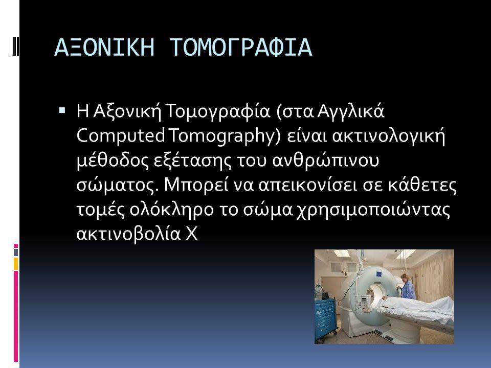 ΑΞΟΝΙΚΗ ΤΟΜΟΓΡΑΦΙΑ  Η Αξονική Τομογραφία (στα Αγγλικά Computed Tomography) είναι ακτινολογική μέθοδος εξέτασης του ανθρώπινου σώματος. Μπορεί να απει