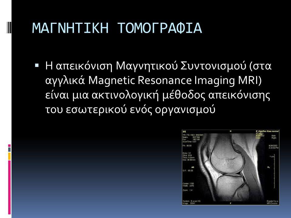 ΜΑΓΝΗΤΙΚΗ ΤΟΜΟΓΡΑΦΙΑ  Η απεικόνιση Μαγνητικού Συντονισμού (στα αγγλικά Magnetic Resonance Imaging MRI) είναι μια ακτινολογική μέθοδος απεικόνισης του