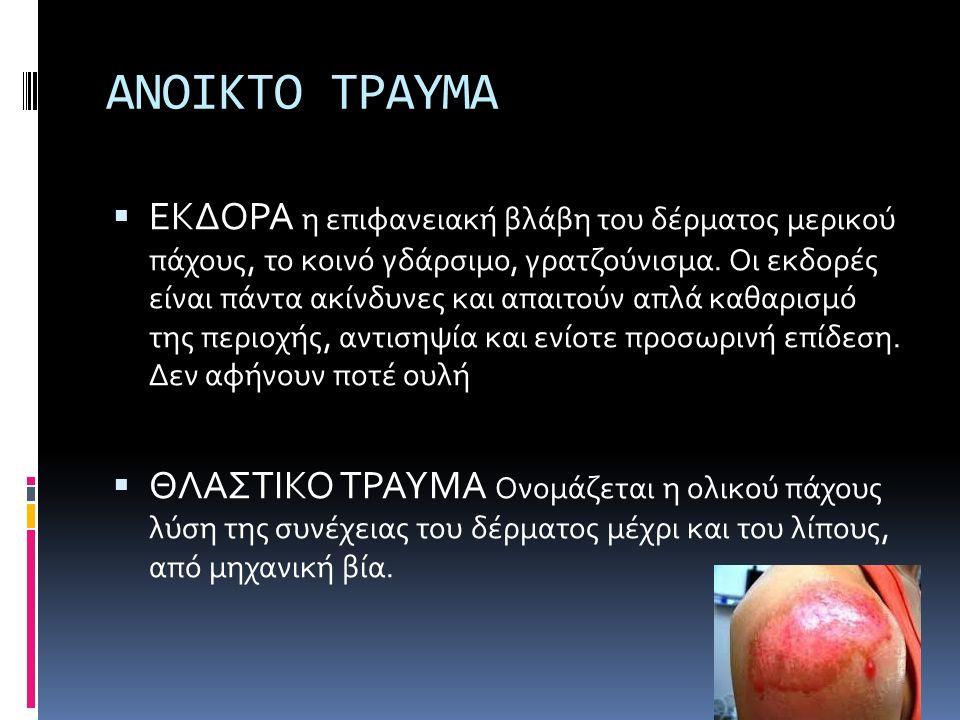 ΑΝΟΙΚΤΟ ΤΡΑΥΜΑ  ΕΚΔΟΡΑ η επιφανειακή βλάβη του δέρματος μερικού πάχους, το κοινό γδάρσιμο, γρατζούνισμα. Οι εκδορές είναι πάντα ακίνδυνες και απαιτού