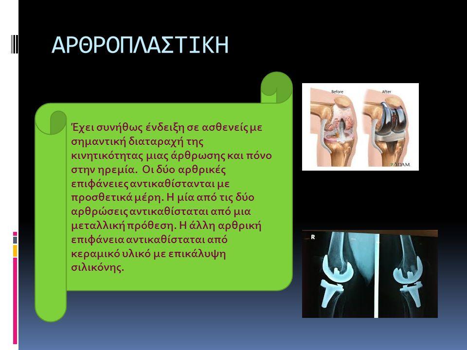 ΑΡΘΡΟΠΛΑΣΤΙΚΗ Έχει συνήθως ένδειξη σε ασθενείς με σημαντική διαταραχή της κινητικότητας μιας άρθρωσης και πόνο στην ηρεμία. Οι δύο αρθρικές επιφάνειες