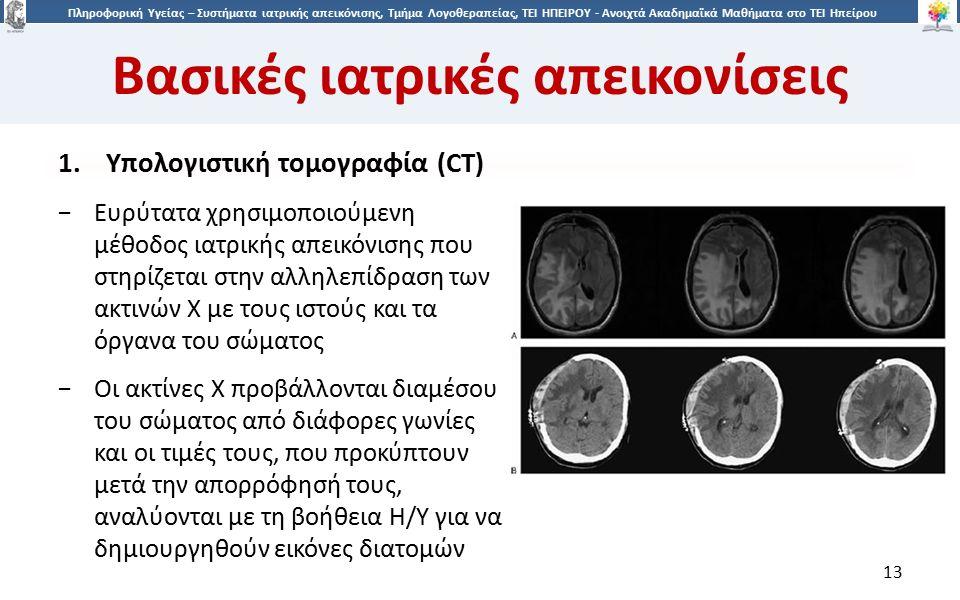 1313 Πληροφορική Υγείας – Συστήματα ιατρικής απεικόνισης, Τμήμα Λογοθεραπείας, ΤΕΙ ΗΠΕΙΡΟΥ - Ανοιχτά Ακαδημαϊκά Μαθήματα στο ΤΕΙ Ηπείρου Βασικές ιατρικές απεικονίσεις 13 1.Υπολογιστική τομογραφία (CT) −Ευρύτατα χρησιμοποιούμενη μέθοδος ιατρικής απεικόνισης που στηρίζεται στην αλληλεπίδραση των ακτινών Χ με τους ιστούς και τα όργανα του σώματος −Οι ακτίνες Χ προβάλλονται διαμέσου του σώματος από διάφορες γωνίες και οι τιμές τους, που προκύπτουν μετά την απορρόφησή τους, αναλύονται με τη βοήθεια Η/Υ για να δημιουργηθούν εικόνες διατομών
