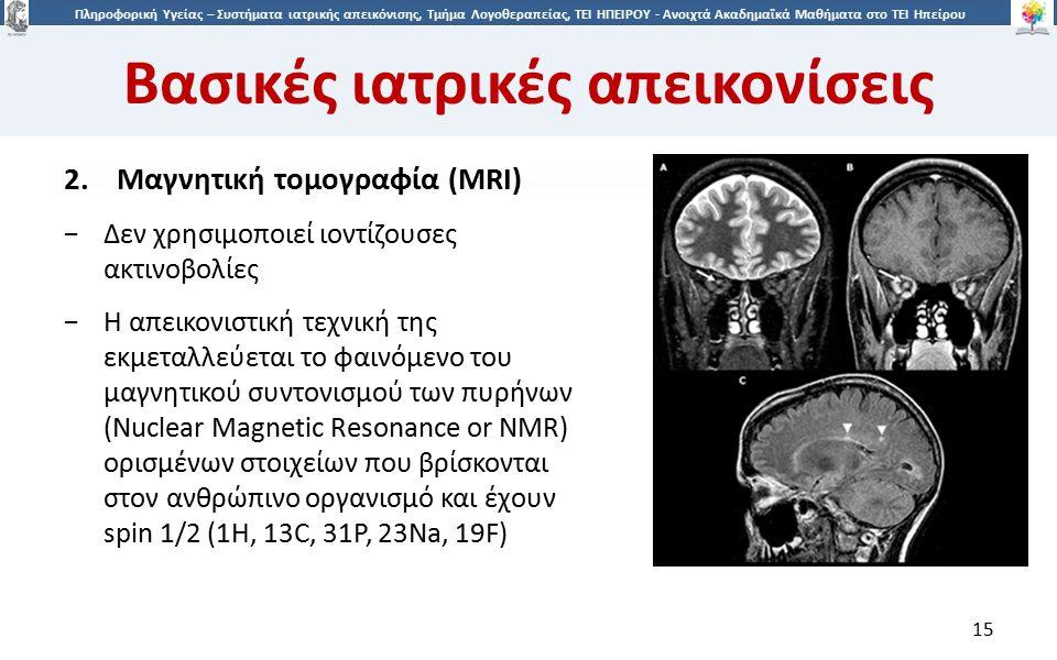 1515 Πληροφορική Υγείας – Συστήματα ιατρικής απεικόνισης, Τμήμα Λογοθεραπείας, ΤΕΙ ΗΠΕΙΡΟΥ - Ανοιχτά Ακαδημαϊκά Μαθήματα στο ΤΕΙ Ηπείρου Βασικές ιατρικές απεικονίσεις 15 2.Μαγνητική τομογραφία (MRI) −Δεν χρησιμοποιεί ιοντίζουσες ακτινοβολίες −Η απεικονιστική τεχνική της εκμεταλλεύεται το φαινόμενο του μαγνητικού συντονισμού των πυρήνων (Nuclear Magnetic Resonance or NMR) ορισμένων στοιχείων που βρίσκονται στον ανθρώπινο οργανισμό και έχουν spin 1/2 (1Η, 13C, 31P, 23Na, 19F)