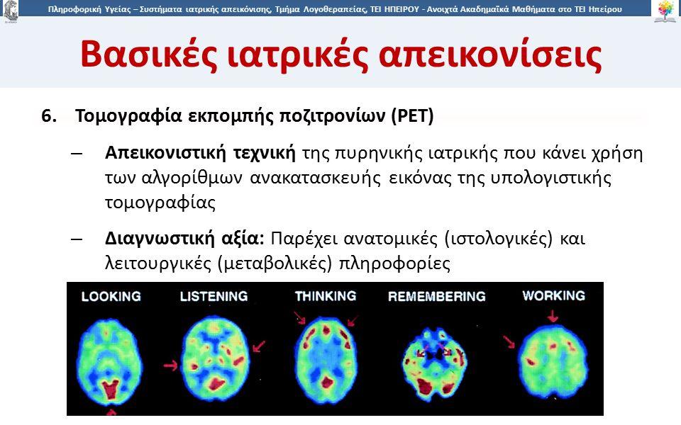 1919 Πληροφορική Υγείας – Συστήματα ιατρικής απεικόνισης, Τμήμα Λογοθεραπείας, ΤΕΙ ΗΠΕΙΡΟΥ - Ανοιχτά Ακαδημαϊκά Μαθήματα στο ΤΕΙ Ηπείρου Βασικές ιατρικές απεικονίσεις 6.Τομογραφία εκπομπής ποζιτρονίων (PET) – Aπεικονιστική τεχνική της πυρηνικής ιατρικής που κάνει χρήση των αλγορίθμων ανακατασκευής εικόνας της υπολογιστικής τομογραφίας – Διαγνωστική αξία: Παρέχει ανατομικές (ιστολογικές) και λειτουργικές (μεταβολικές) πληροφορίες