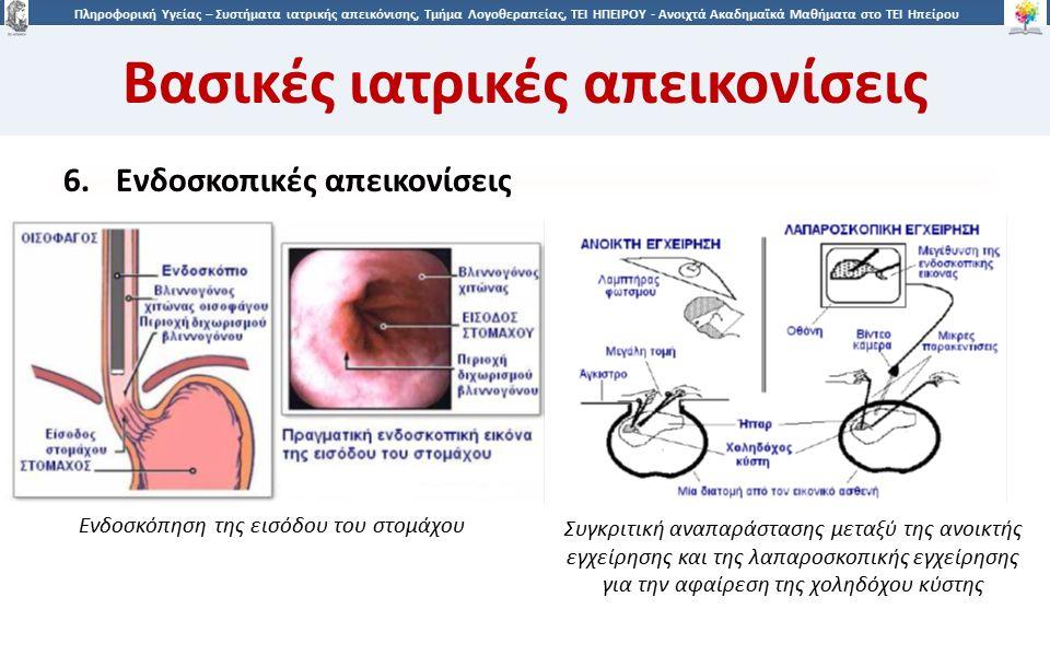 2121 Πληροφορική Υγείας – Συστήματα ιατρικής απεικόνισης, Τμήμα Λογοθεραπείας, ΤΕΙ ΗΠΕΙΡΟΥ - Ανοιχτά Ακαδημαϊκά Μαθήματα στο ΤΕΙ Ηπείρου Βασικές ιατρικές απεικονίσεις 6.Ενδοσκοπικές απεικονίσεις Ενδοσκόπηση της εισόδου του στομάχου Συγκριτική αναπαράστασης μεταξύ της ανοικτής εγχείρησης και της λαπαροσκοπικής εγχείρησης για την αφαίρεση της χοληδόχου κύστης