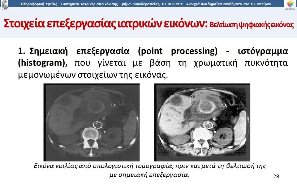 2828 Πληροφορική Υγείας – Συστήματα ιατρικής απεικόνισης, Τμήμα Λογοθεραπείας, ΤΕΙ ΗΠΕΙΡΟΥ - Ανοιχτά Ακαδημαϊκά Μαθήματα στο ΤΕΙ Ηπείρου 28 1.Σημειακή επεξεργασία (point processing) - ιστόγραμμα (histogram), που γίνεται με βάση τη χρωματική πυκνότητα μεμονωμένων στοιχείων της εικόνας.