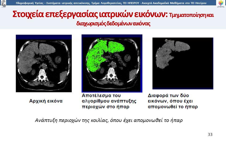 3 Πληροφορική Υγείας – Συστήματα ιατρικής απεικόνισης, Τμήμα Λογοθεραπείας, ΤΕΙ ΗΠΕΙΡΟΥ - Ανοιχτά Ακαδημαϊκά Μαθήματα στο ΤΕΙ Ηπείρου 33 Ανάπτυξη περιοχών της κοιλίας, όπου έχει απομονωθεί το ήπαρ Στοιχεία επεξεργασίας ιατρικών εικόνων: Τμηματοποίηση και διαχωρισμός δεδομένων εικόνας
