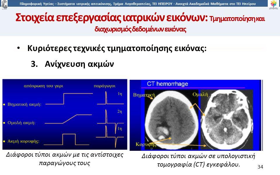 3434 Πληροφορική Υγείας – Συστήματα ιατρικής απεικόνισης, Τμήμα Λογοθεραπείας, ΤΕΙ ΗΠΕΙΡΟΥ - Ανοιχτά Ακαδημαϊκά Μαθήματα στο ΤΕΙ Ηπείρου 34 Κυριότερες τεχνικές τμηματοποίησης εικόνας: 3.Ανίχνευση ακμών Διάφοροι τύποι ακμών με τις αντίστοιχες παραγώγους τους Διάφοροι τύποι ακμών σε υπολογιστική τομογραφία (CT) εγκεφάλου.