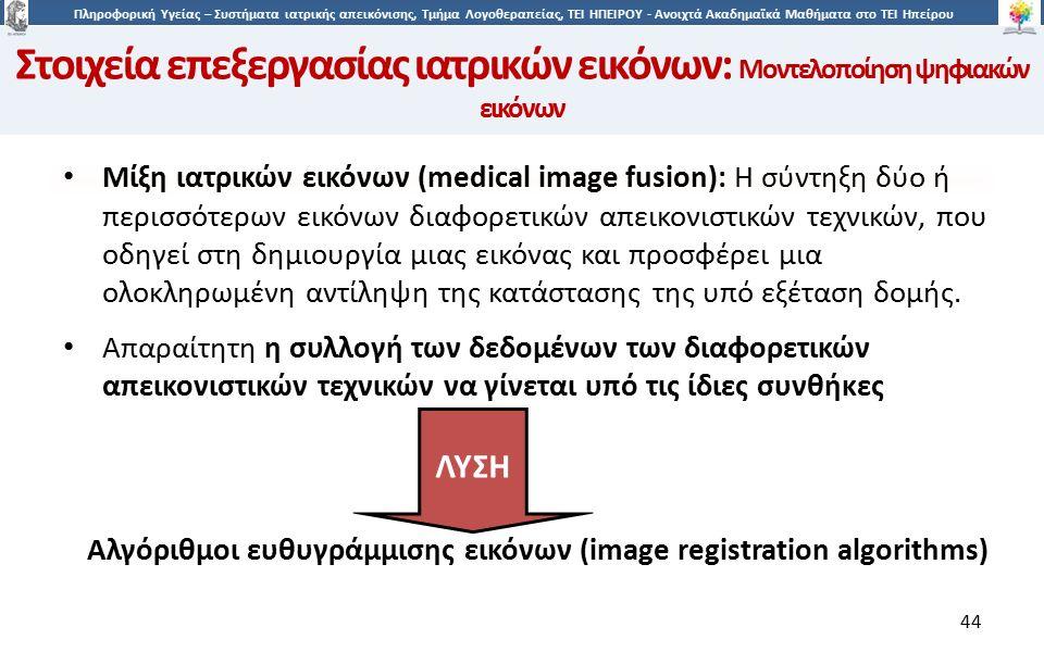 4 Πληροφορική Υγείας – Συστήματα ιατρικής απεικόνισης, Τμήμα Λογοθεραπείας, ΤΕΙ ΗΠΕΙΡΟΥ - Ανοιχτά Ακαδημαϊκά Μαθήματα στο ΤΕΙ Ηπείρου 44 Μίξη ιατρικών εικόνων (medical image fusion): H σύντηξη δύο ή περισσότερων εικόνων διαφορετικών απεικονιστικών τεχνικών, που οδηγεί στη δημιουργία μιας εικόνας και προσφέρει μια ολοκληρωμένη αντίληψη της κατάστασης της υπό εξέταση δομής.
