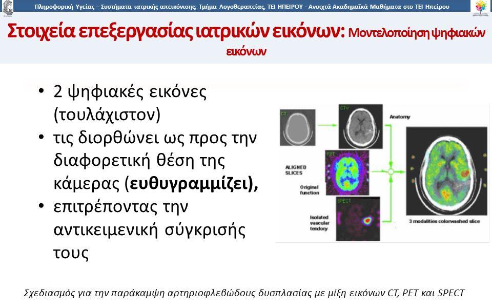 4646 Πληροφορική Υγείας – Συστήματα ιατρικής απεικόνισης, Τμήμα Λογοθεραπείας, ΤΕΙ ΗΠΕΙΡΟΥ - Ανοιχτά Ακαδημαϊκά Μαθήματα στο ΤΕΙ Ηπείρου 46 Σχεδιασμός για την παράκαμψη αρτηριοφλεβώδους δυσπλασίας με μίξη εικόνων CT, PET και SPECT Στοιχεία επεξεργασίας ιατρικών εικόνων: Μοντελοποίηση ψηφιακών εικόνων 2 ψηφιακές εικόνες (τουλάχιστον) τις διορθώνει ως προς την διαφορετική θέση της κάμερας (ευθυγραμμίζει), επιτρέποντας την αντικειμενική σύγκρισής τους