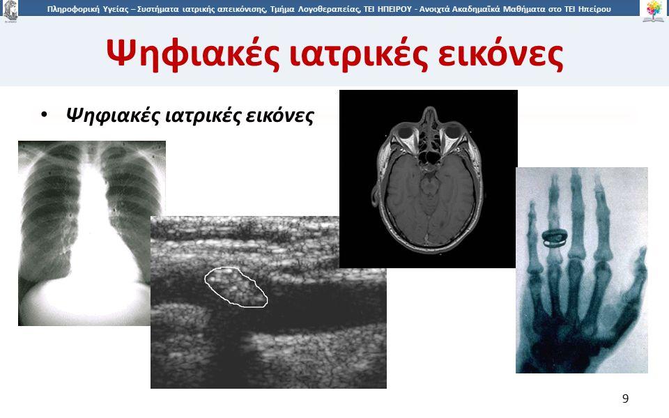 1010 Πληροφορική Υγείας – Συστήματα ιατρικής απεικόνισης, Τμήμα Λογοθεραπείας, ΤΕΙ ΗΠΕΙΡΟΥ - Ανοιχτά Ακαδημαϊκά Μαθήματα στο ΤΕΙ Ηπείρου Ψηφιακές ιατρικές εικόνες 10 Είδη ιατρικών εικόνων: – Δύο διαστάσεων (2D): Ακτινογραφίες και υπέρηχοι.