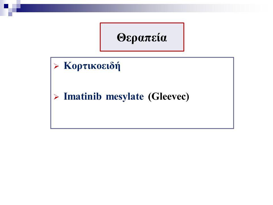 Θεραπεία  Κορτικοειδή  Imatinib mesylate (Gleevec)