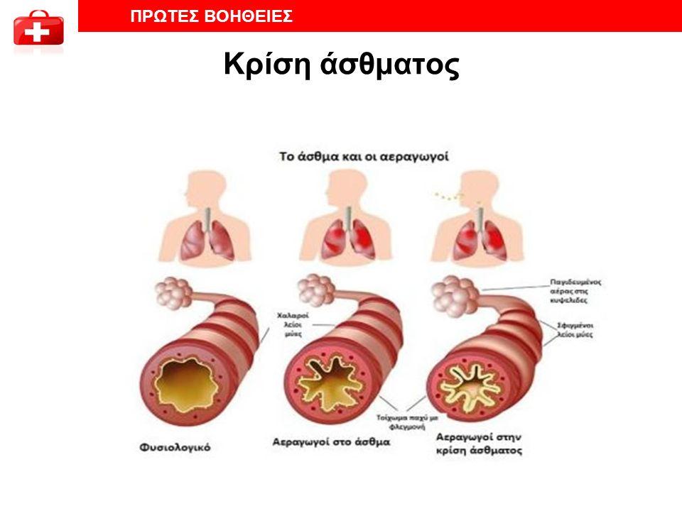 Κρίση άσθματος ΠΡΩΤΕΣ ΒΟΗΘΕΙΕΣ