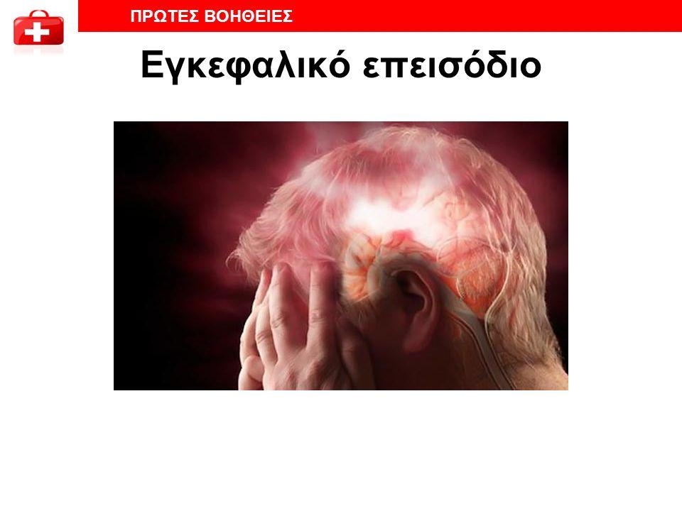 Εγκεφαλικό επεισόδιο ΠΡΩΤΕΣ ΒΟΗΘΕΙΕΣ